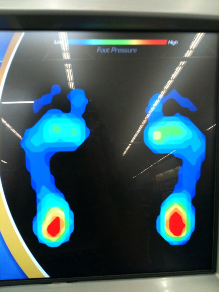 dr scholls orthotic center machine showing high pressure on heels